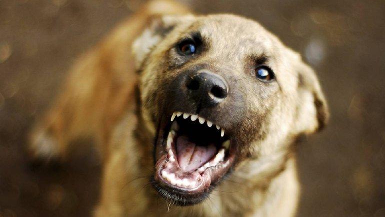 Півторарічну дівчинку покусав собака на Лебединці