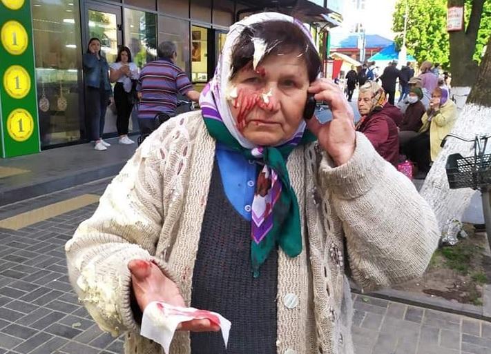 На Рівненщині жінка побила банку з сметаною об голову продавчині